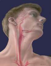 The Carotid Arteries on Either Side of the Neck Supply Blood to the Brain